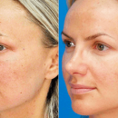 Diamond Microdermabrasion in London