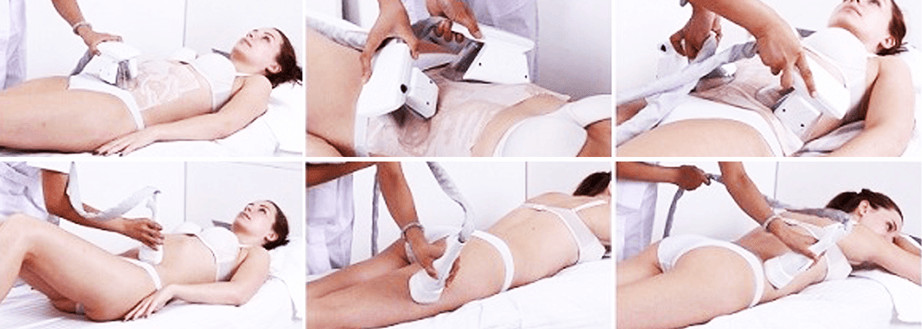 Cryogenic Lipolysis