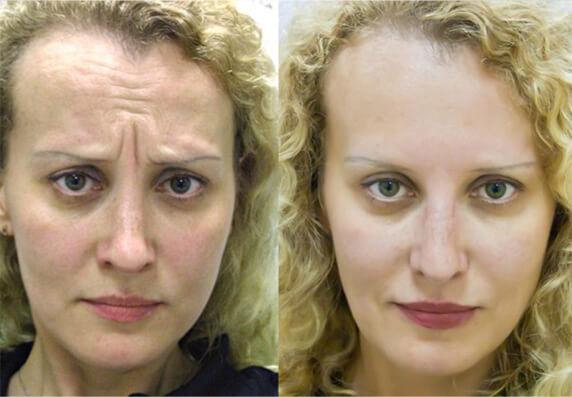 London Botox