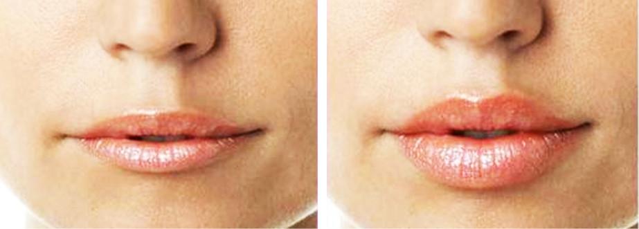 Safe Facial Contouring