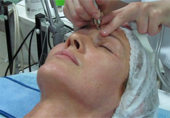 Skin Tightening Treatments London